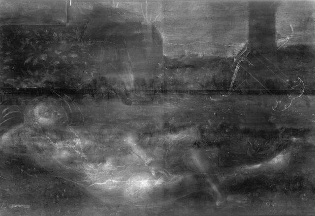 Radiographie / ©Arcanes